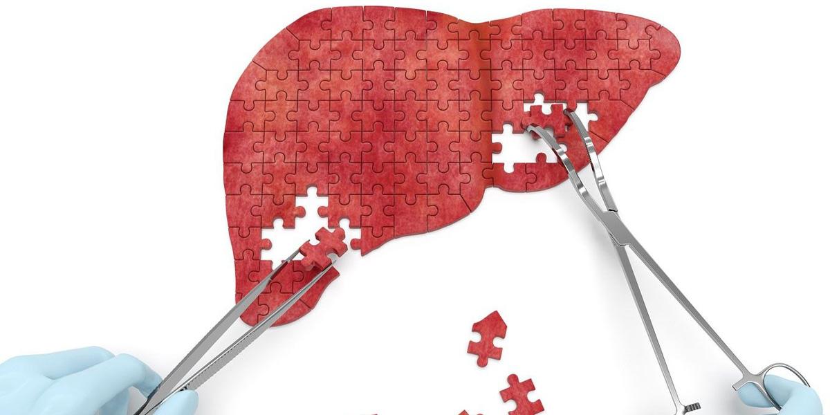 chirurgie-hepatobiliara